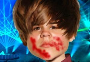 Hurt Ragdoll Bieber 2